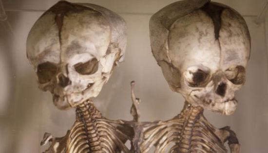 重口味之旅参观世界十大怪异医学博物馆