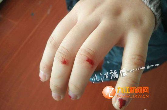 乘客手指受伤